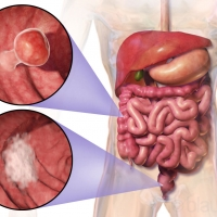 A computational model to determine the progression of colorectal cancer